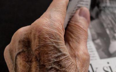 "Rheumatoid artrit – Normalt kaldet ""Leddegigt"""